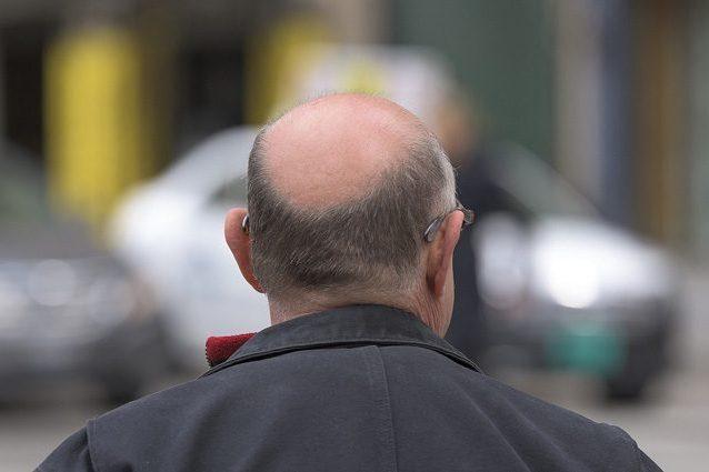 Calvizie, le cellule immunitarie attivano la ricrescita dei capelli: possibile nuova terapia