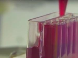 Test Iset: si possono prevenire i tumori con una analisi del sangue?