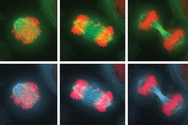 Eliminare le cellule potenzialmente cancerose? La scoperta dello scienziato Santaguida del MIT