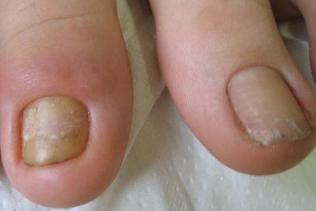 Perionissi, infiammazione delle unghie dopo la manicure: cos'è, sintomi e cura