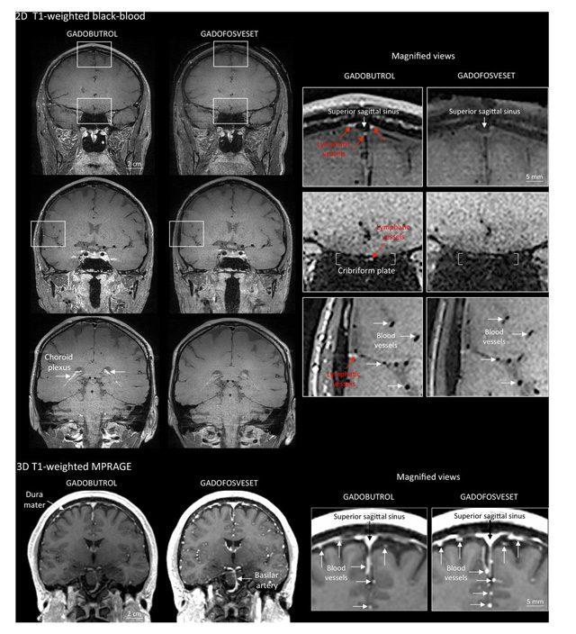 Le scansioni che mostrano la posizione della rete linfatica: Credit NIH