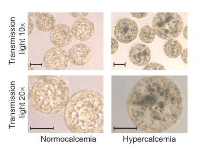Cancro, un neo artificiale fa la 'spia': così rivela la presenza di tumori