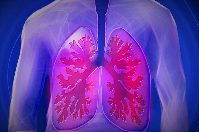 Cancro al polmone, addio a chemioterapia per il 40% dei pazienti sempre più vicino