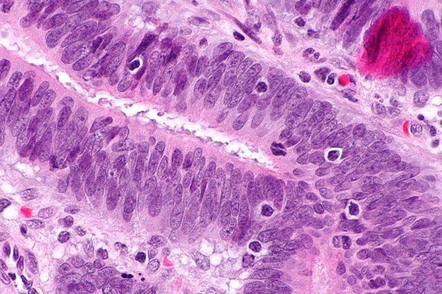 Terapia rivoluzionaria con cellule immunitarie TIL uccide il cancro