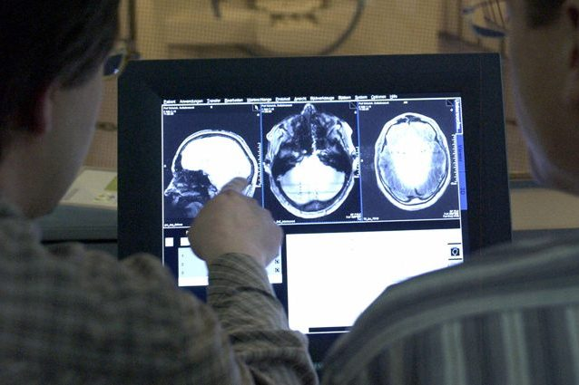 Sclerosi Multipla, svolta storica: farmaco riduce atrofia del cervello per la prima volta