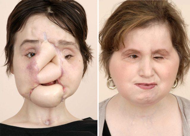 Risultati immagini per foto di trapianto di faccia