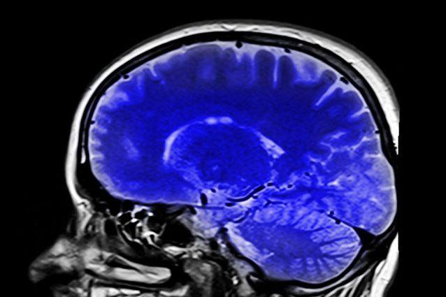 Cancro al cervello, una proteina legata all'Alzheimer può bl