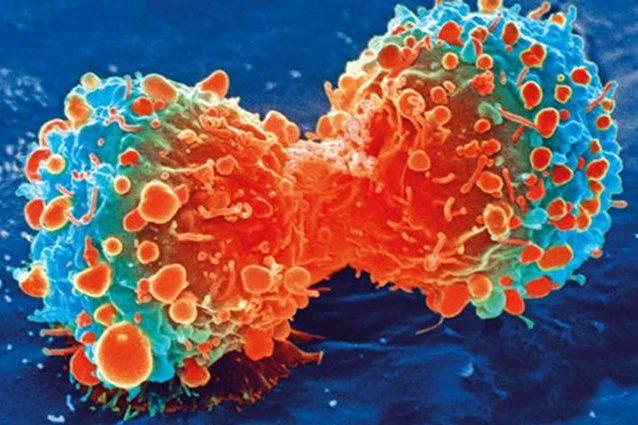 """Cancro, ascoltata la """"voce"""" dei tumori per la prima volta: s"""
