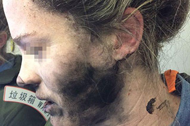 Le esplodono gli auricolari nelle orecchie: donna resta ustionata in aereo